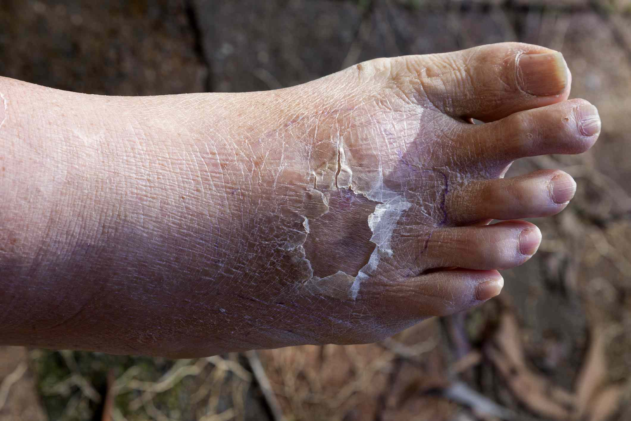 Cellulitis on a foot