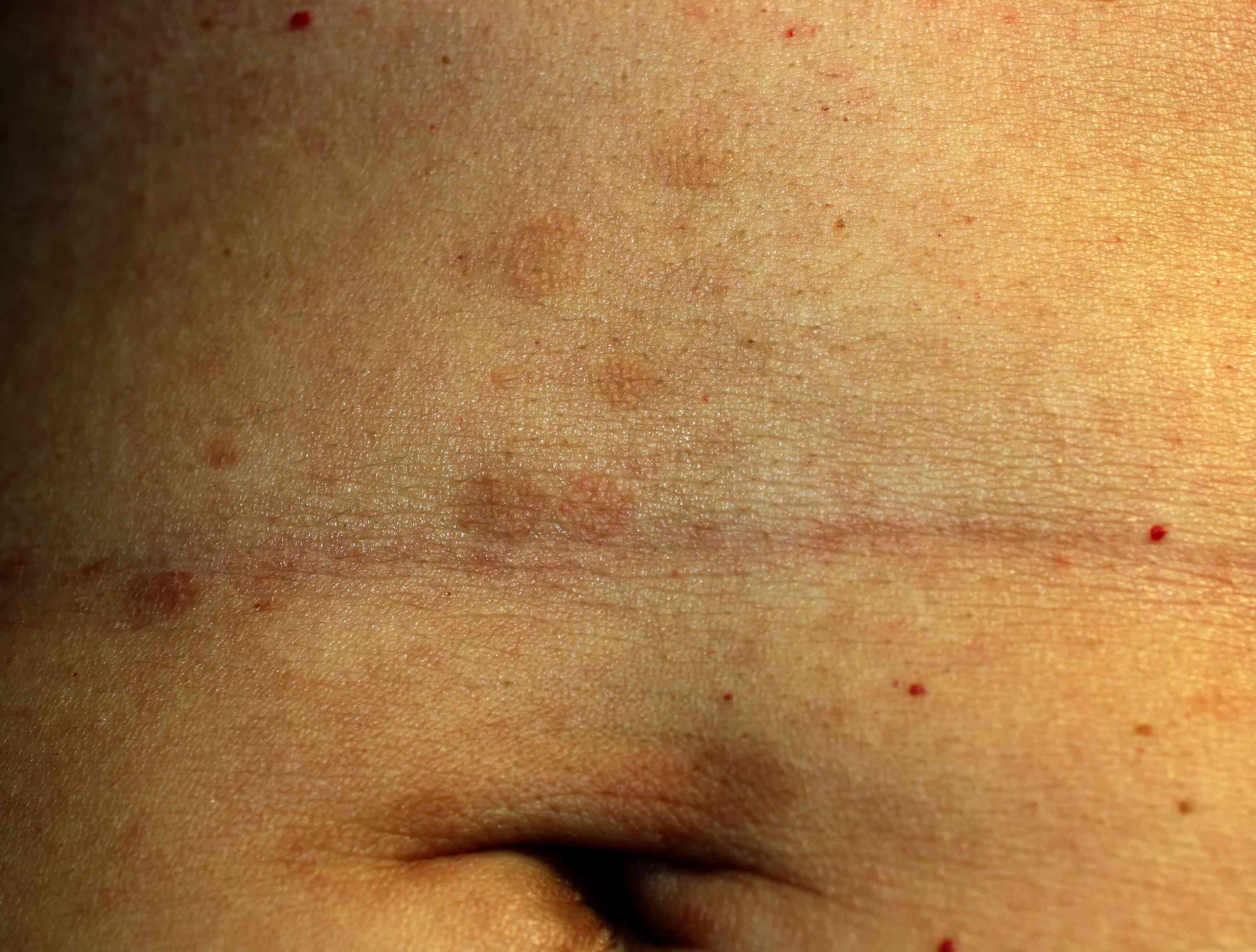 Lichen planus on the abdomen