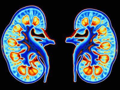 Kidneys graphic