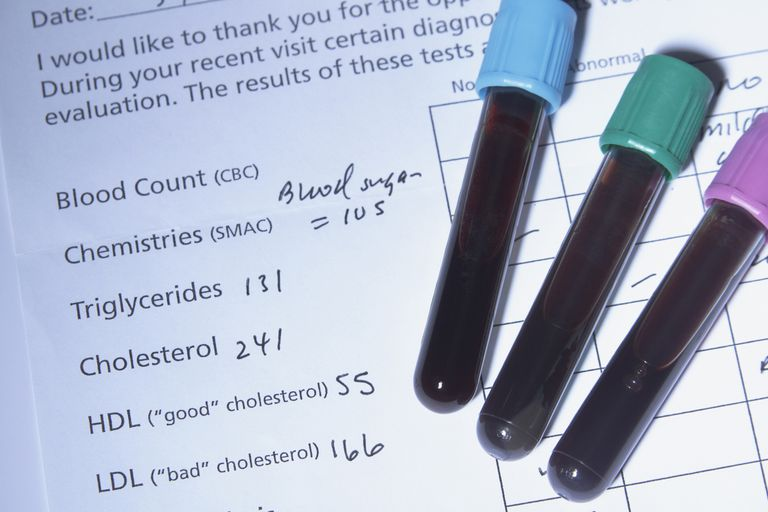 Results from a cholesterol test.