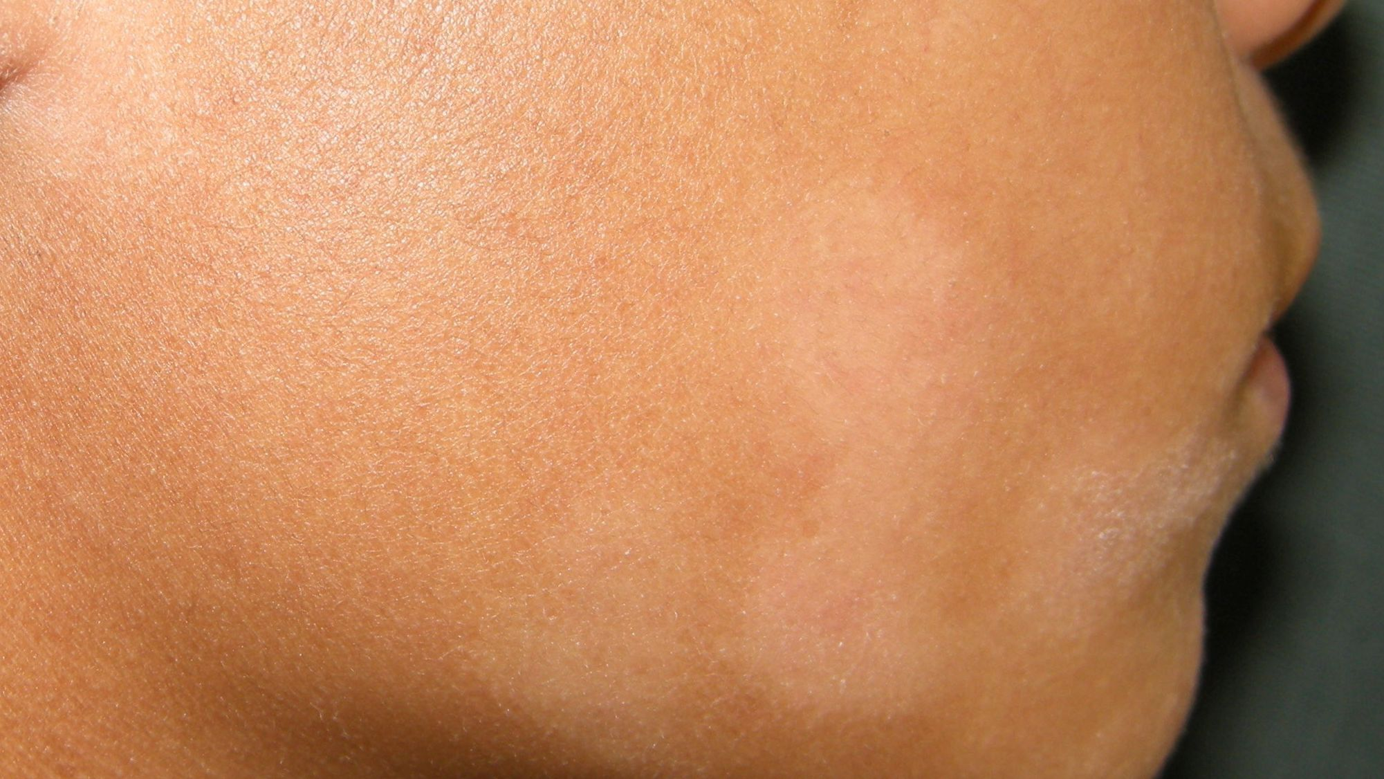 Pityriasis Alba Symptoms Causes Diagnosis And Treatment