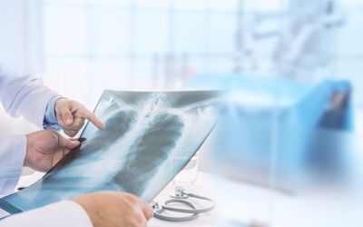 doctor pointing out a benign lung tumor on chest X-ray