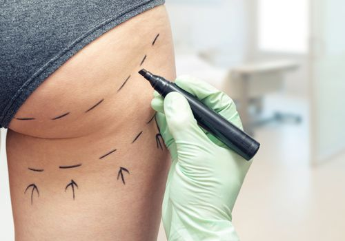 Woman's thigh being marked up for plastic surgery