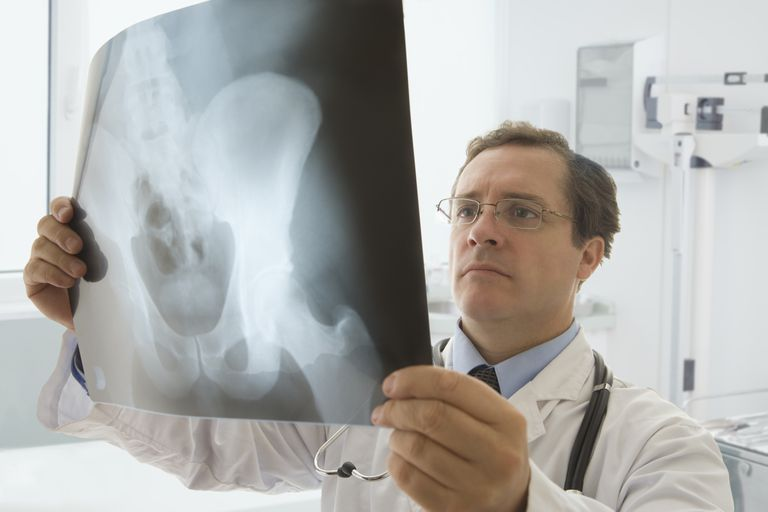 Doctor looking at X-ray of human pelvis