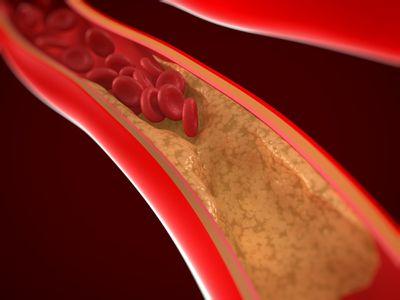 illustration of artery