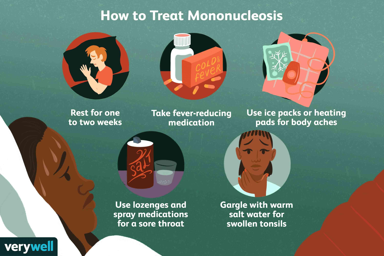 How to treat mononucleosis.