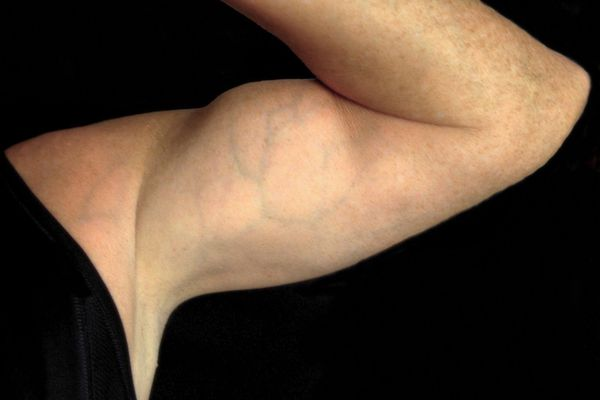 Closeup of a man's biceps muscle