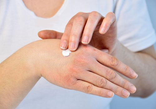 putting moisturizer to treat Psoriasis