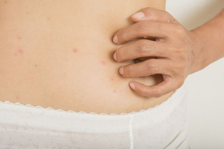 Hives on a woman's stomach