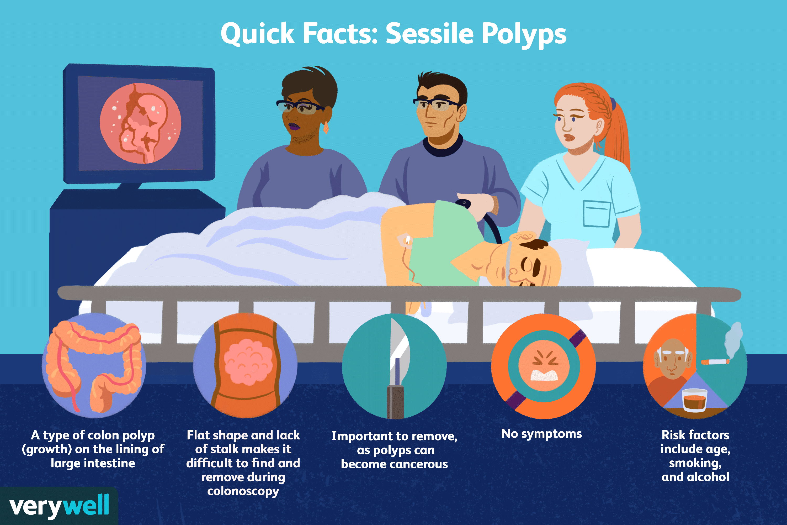 Sessile Polyp Symptoms Causes Diagnosis And Treatment