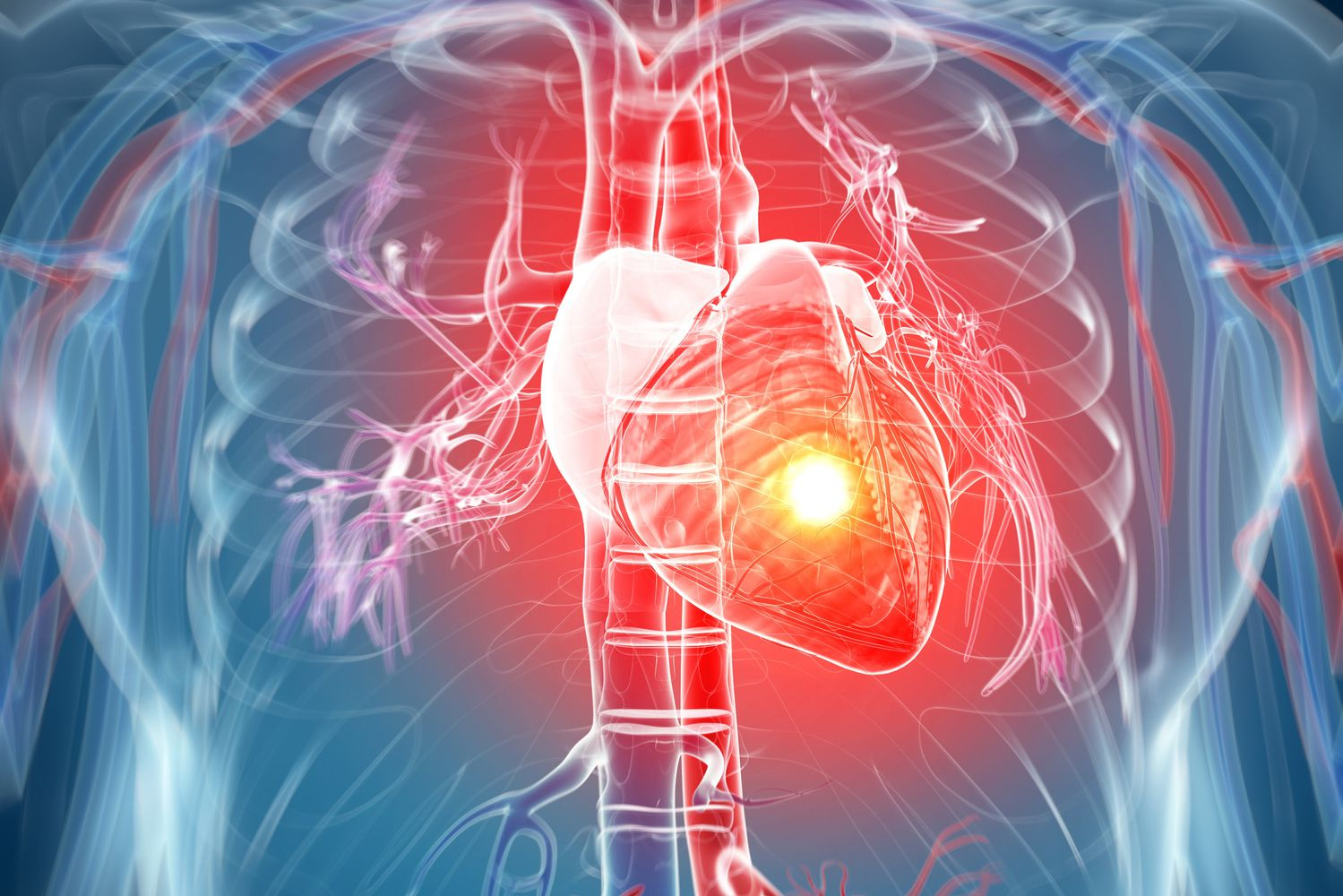 Prognosis and Causes of Silent Heart Attacks