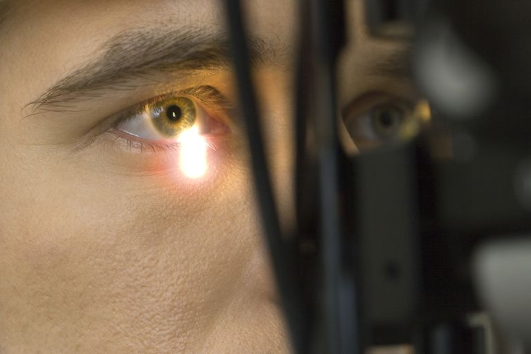 Male patient undergoing eye exam, extreme close-up