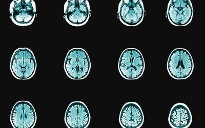 series of brain scans