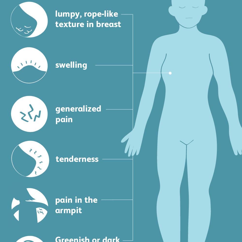 Symptoms of Fibrocystic Breasts