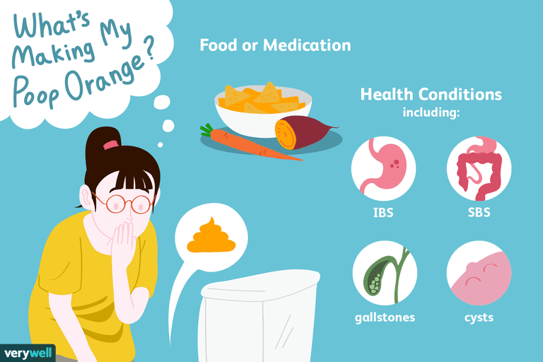 causes of orange stool include various foods, medications, and health conditions