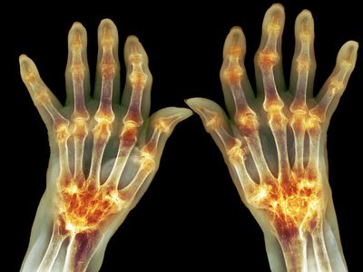 X-ray of hands with arthritis