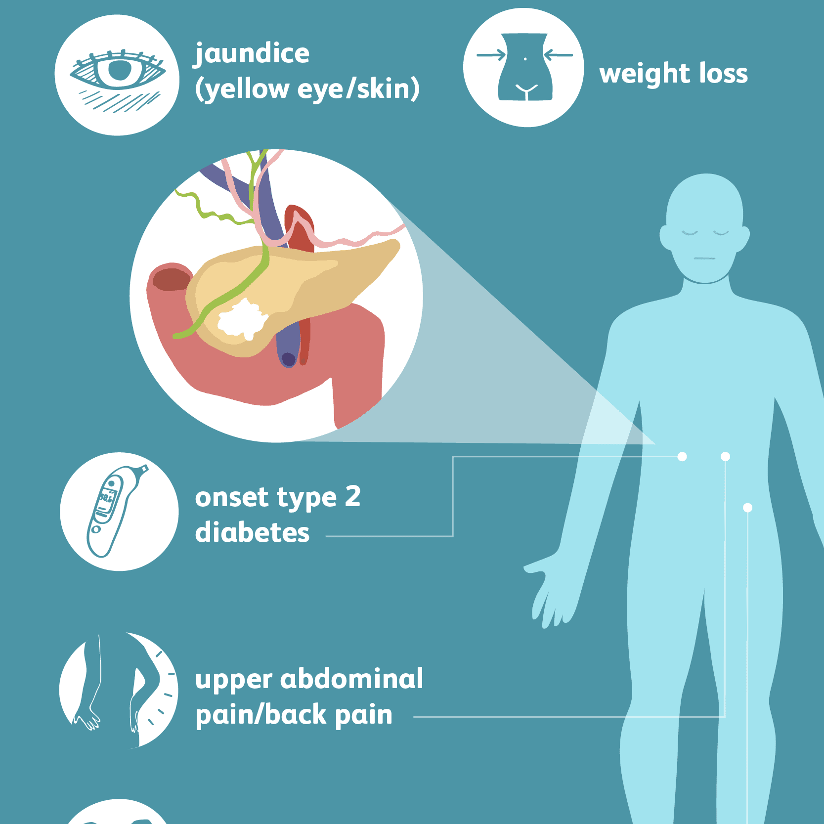 Pancreatic Cancer: Signs, Symptoms, and Complications