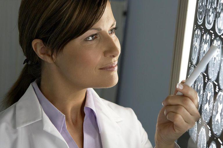 Doctor examining MRI scans
