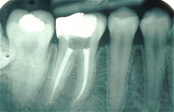 Getting a Dental Crown on Your Tooth