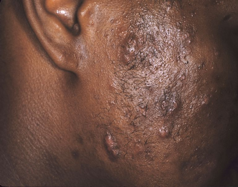 Man with severe acne