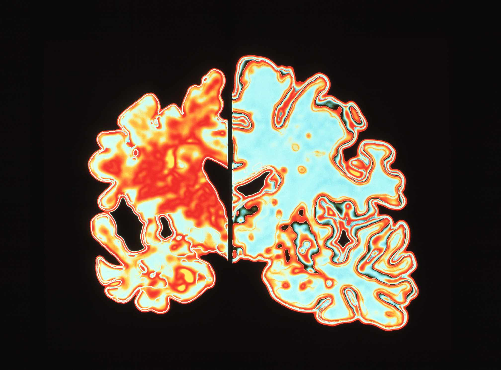 Image Comparing Alzheimers Brain With A Normal Brain