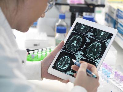 Examining a brain scan