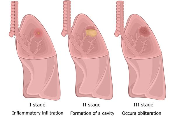 stages of lung abscess illustration