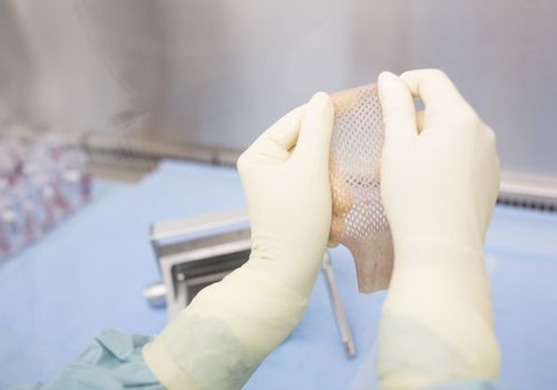 Scientist processing skin graft in laboratory