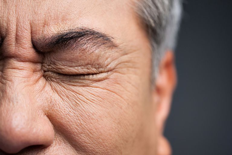 Man closing eyes due to eye irritation