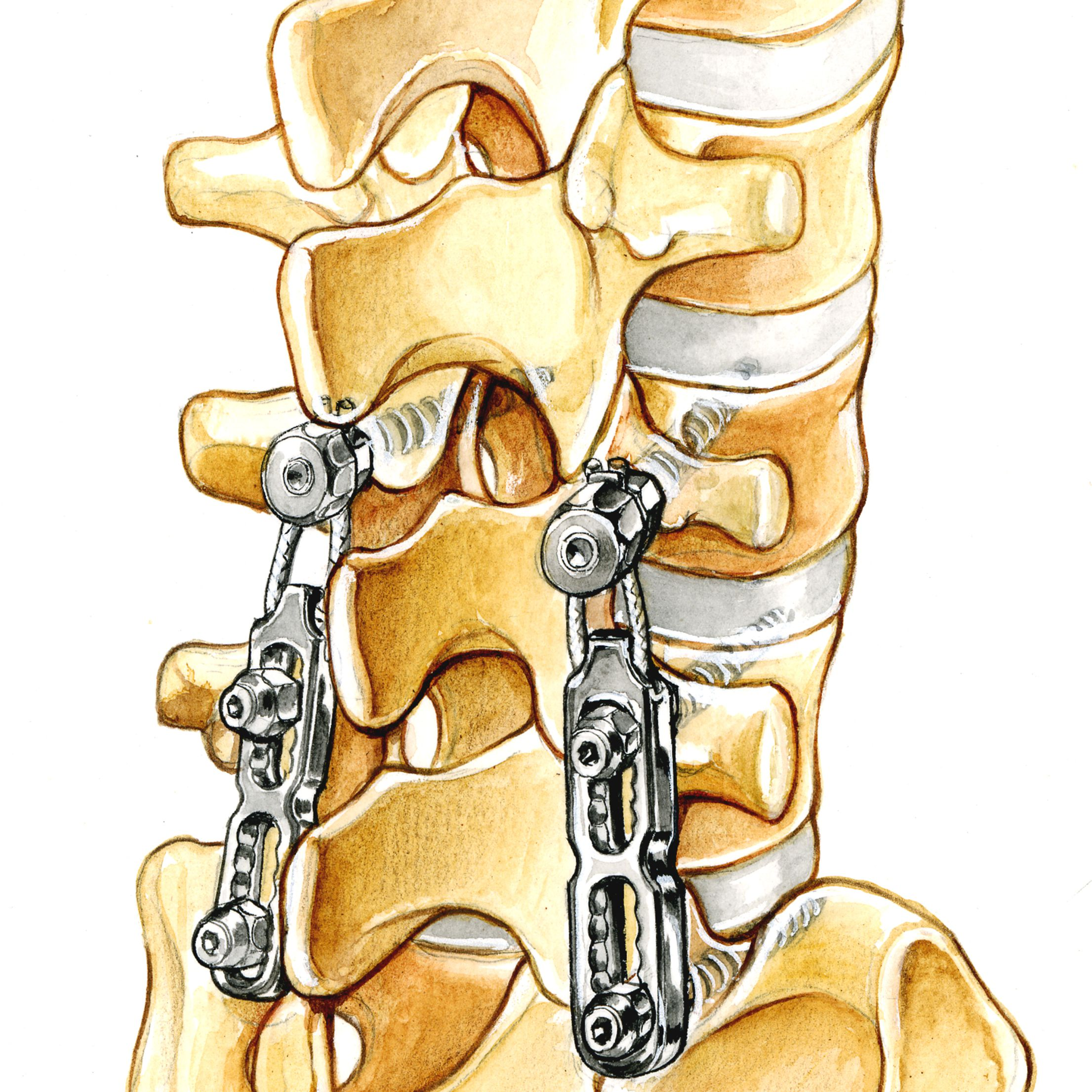 should you have surgery for cervical radiculopathy?