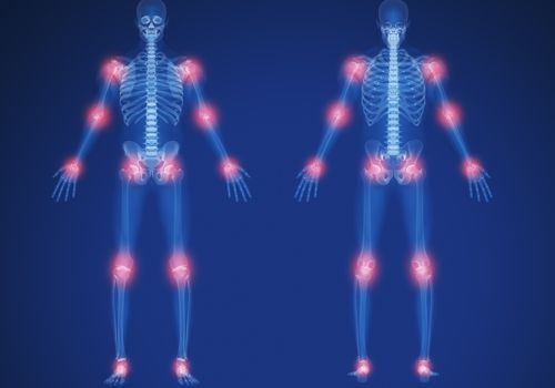 Illustration of human skeletal system with red glowing orbs on joints