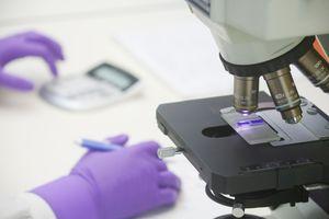 Scientist reviewing bone marrow slides