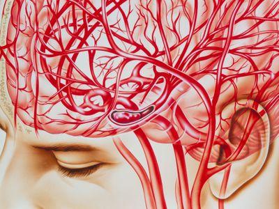 Artwork of cerebral embolism, cause of stroke