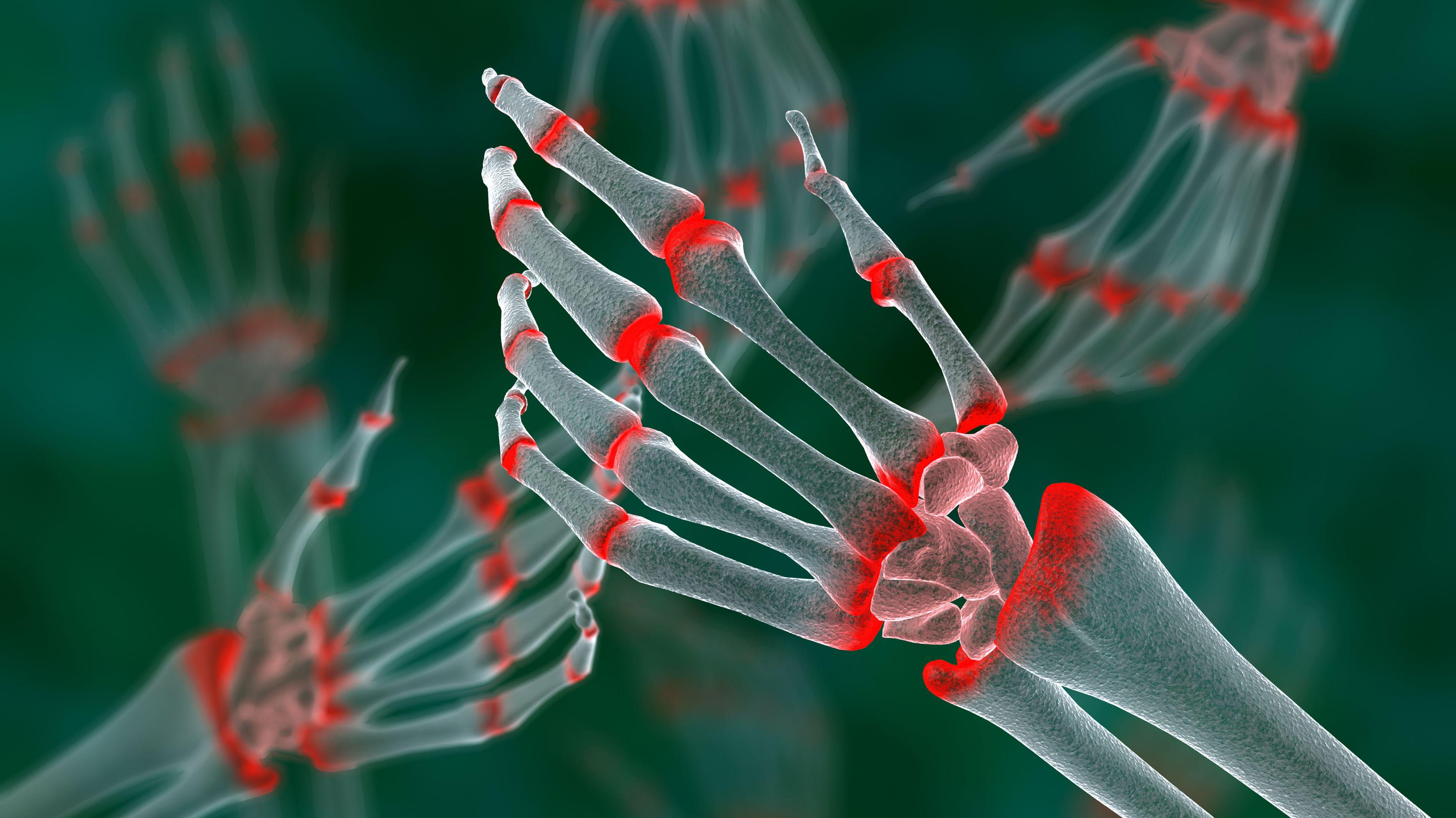 Rheumatoid Arthritis: Signs, Symptoms, and Complications
