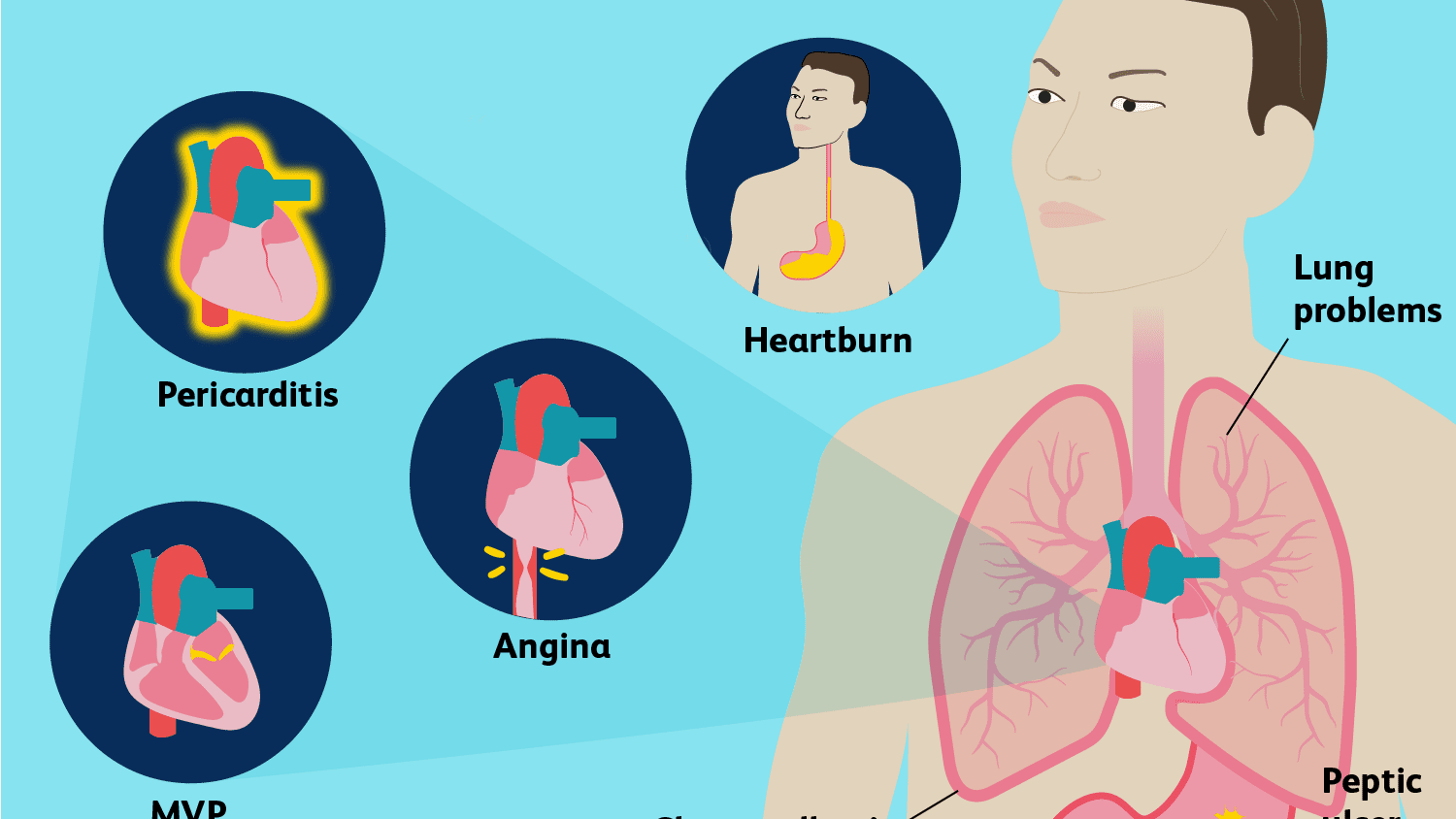 How Do You Tell If Chest Pain Is a Serious Emergency?