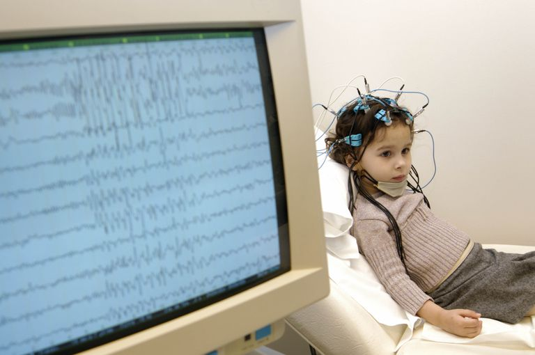 Electroencephalogram (EEG) on a 4-year old girl. Epilepsy tracing on the screen.