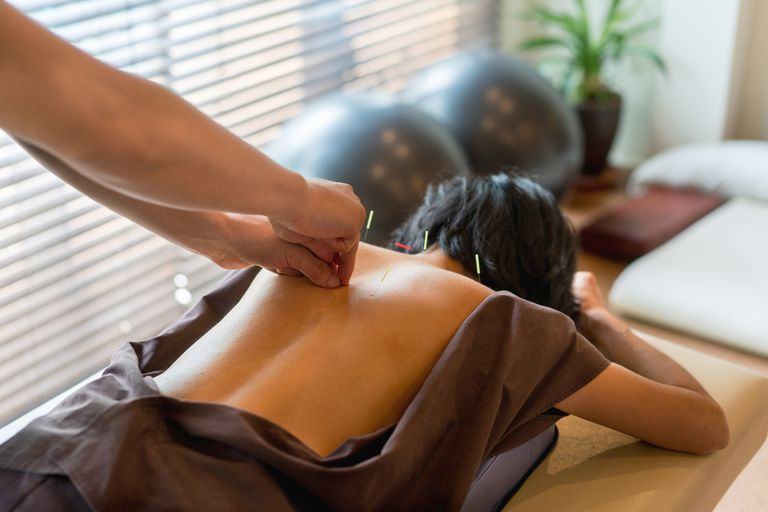 Woman at the acupuncturist