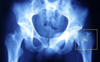 Xray of a broken hip