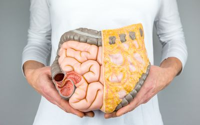 A person holding a model of human intestines in front of body on white background.