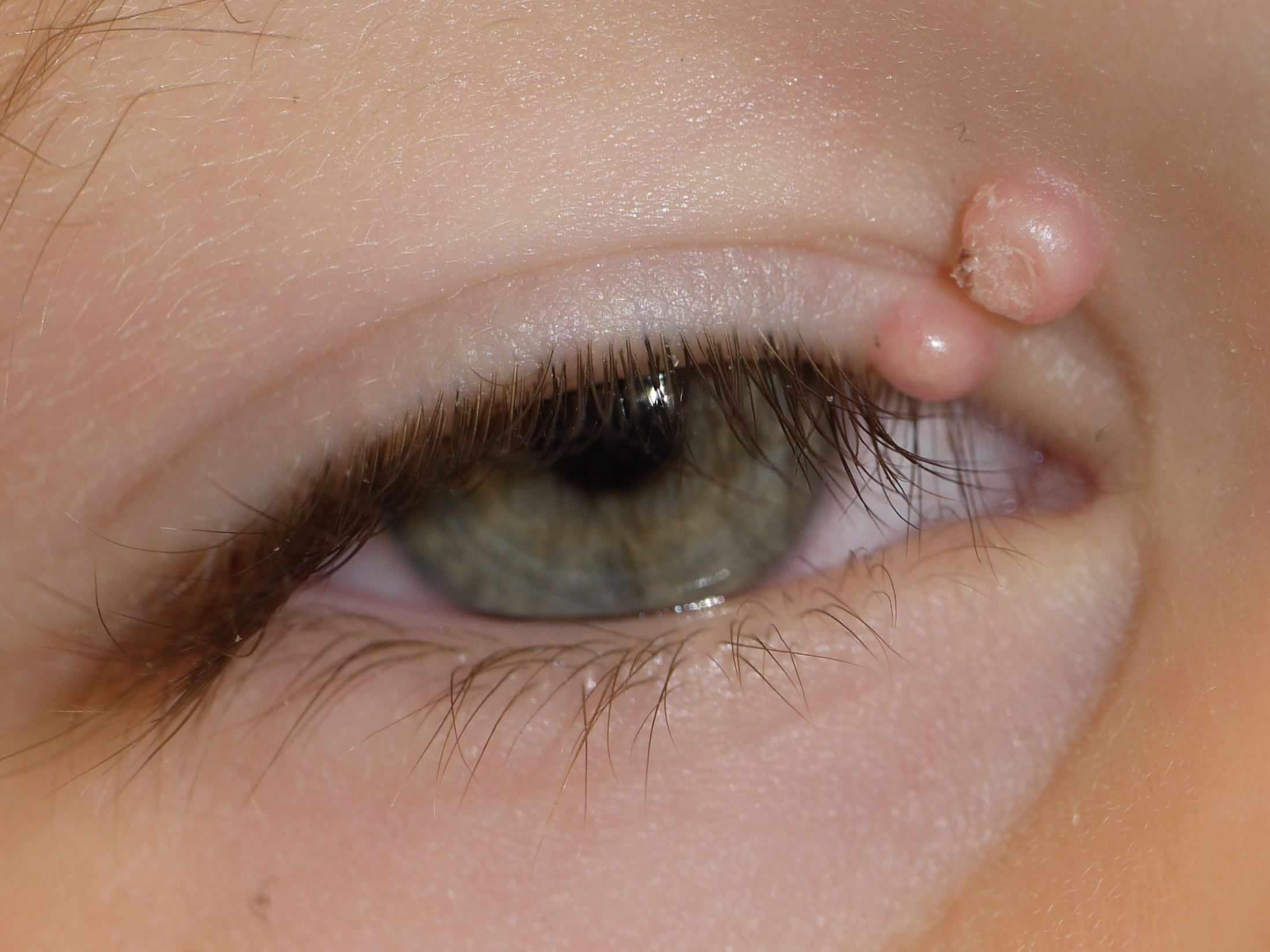 Molluscum contagiosum on eyelid