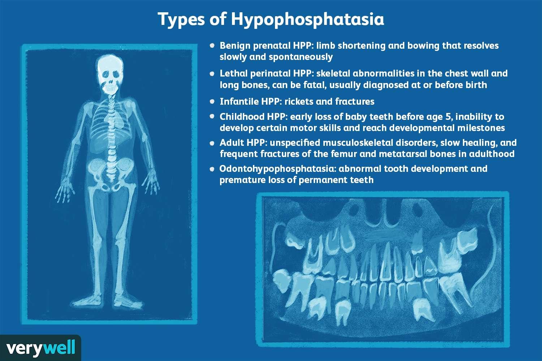 Types of Hypophosphatasia