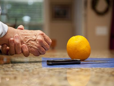 Woman holding hand in pain after trying to cut an orange
