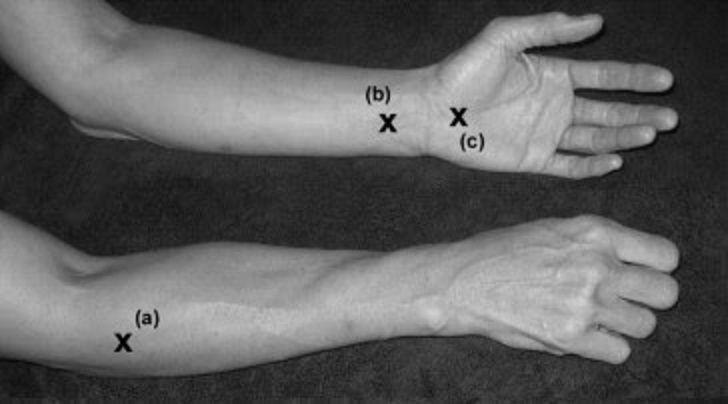 trigger points for carpal tunnel syndrome