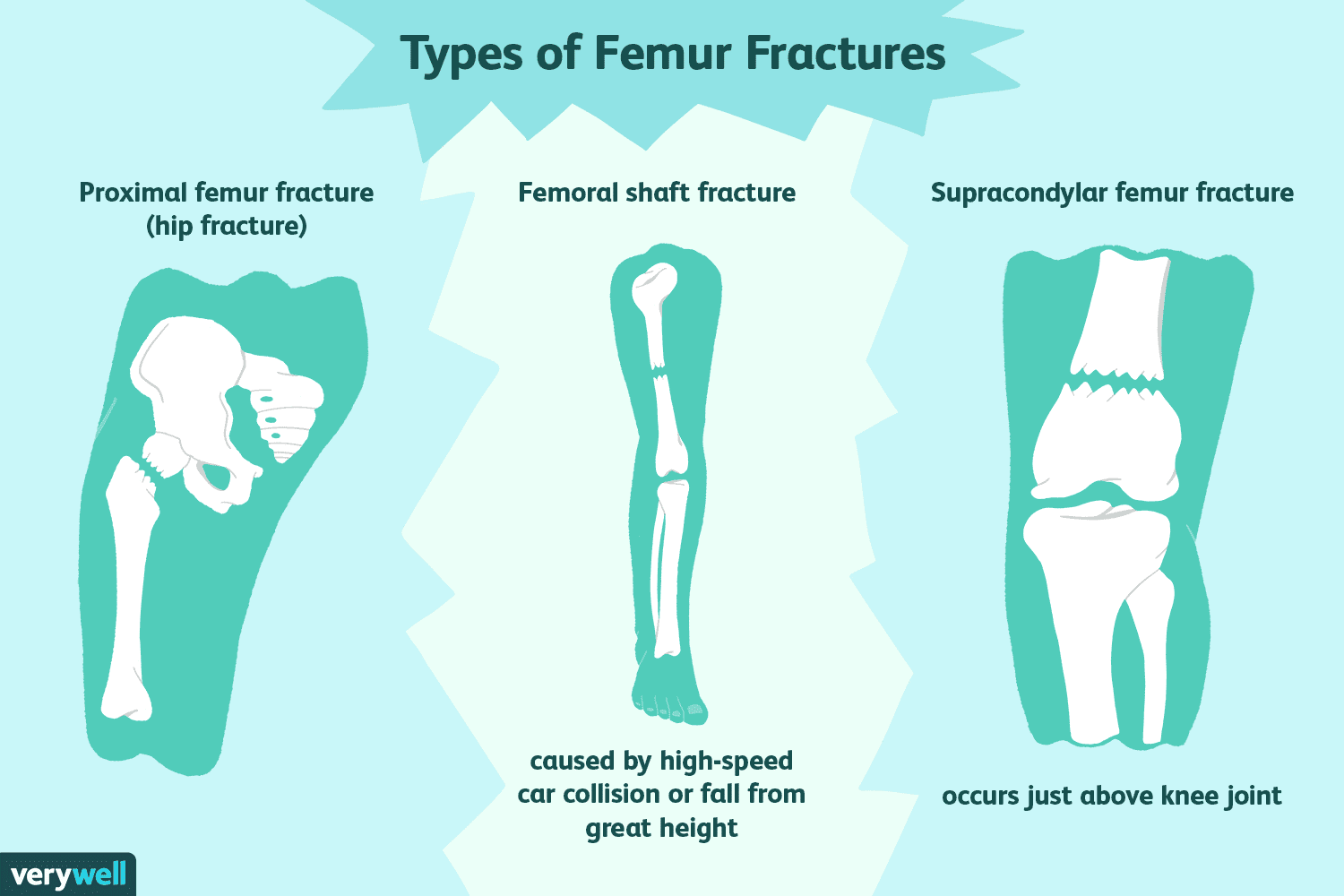 How to Treat a Femur Fracture (Broken Thigh Bone)