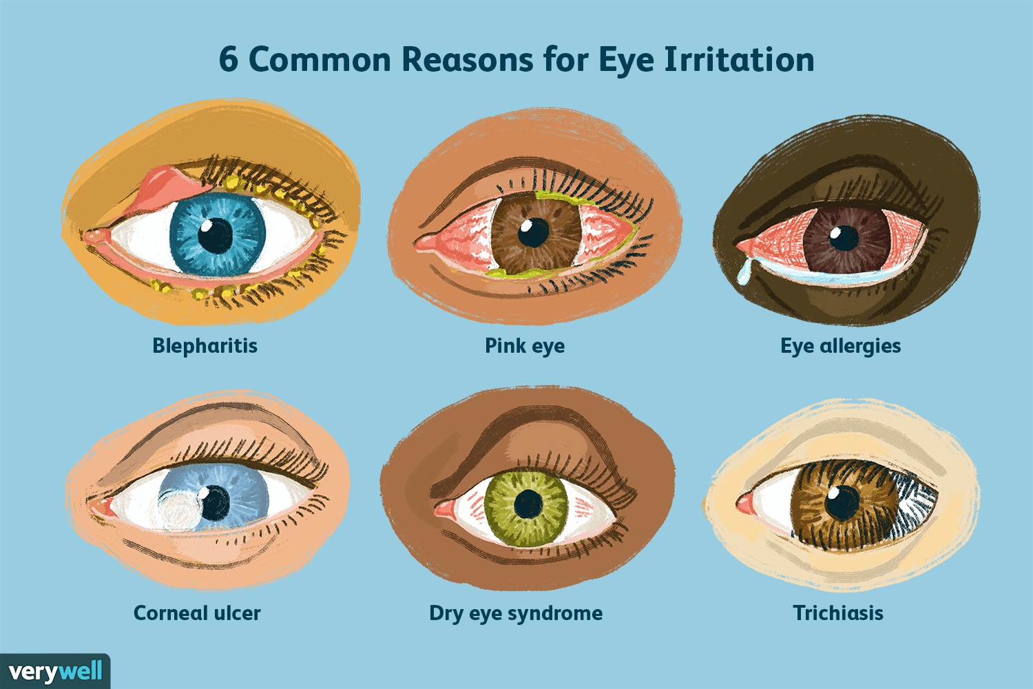 Top 6 Reasons For Eye Irritation