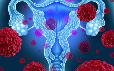 diagram of uterus surrounded by cancer cells