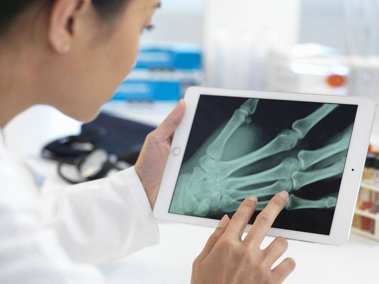 Doctor looking at hand X-ray on a digital tablet