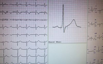 What Is Svt >> Supraventricular Tachycardia Svt In Heart Disease