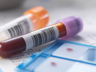 vials of blood to be tested