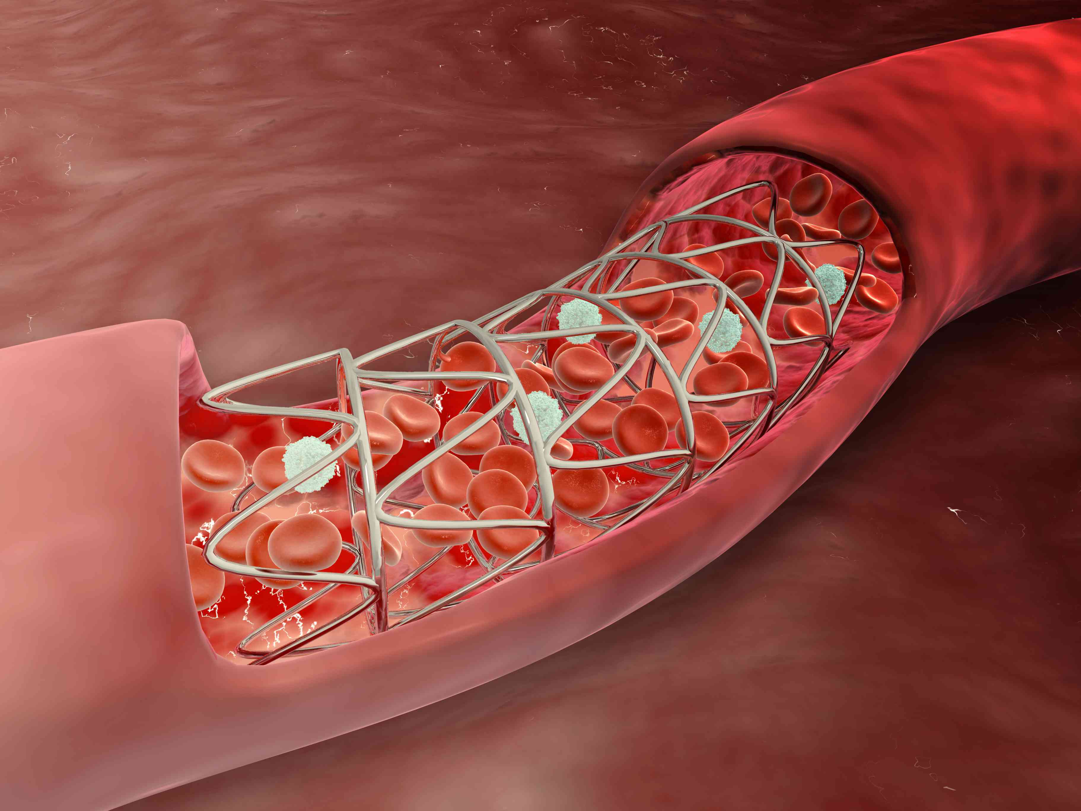 A stent in a coronary artery